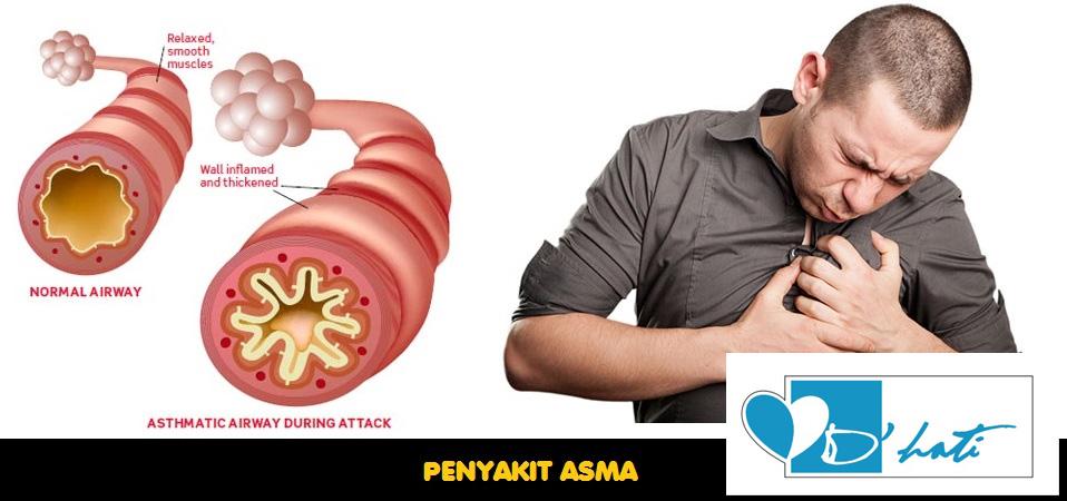 penawar asma atau lelah secara semulajadi selamat dan berkesan menggunakan madu kelulut asli dari hutan testimoni pesakit asma atau lelah sembuh dengan madu lebah kelulut