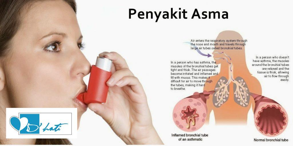 penawar asma dewasa ubat lelah yang paling mujarab untuk dewasa dan kanak kanak menggunakan madu kelulut asli dari hutan cara merawat asma dan lelah dengan berkesan