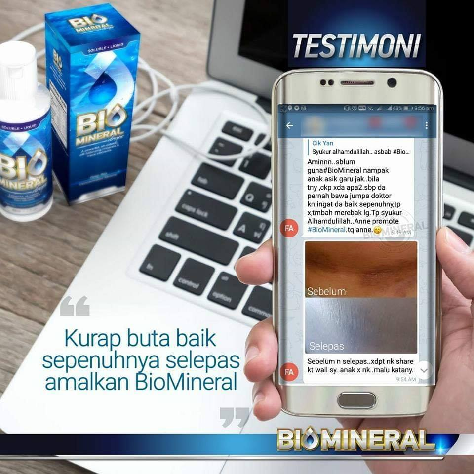 testimoni biomineral menyembuhkan dan hilangkan penyakit kurap buta dengan penawar kurap atau ubat kurap yang mujarab