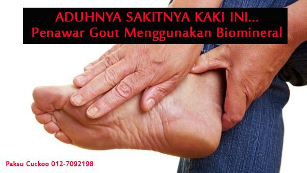 sembuhkan sakit gout dan rawatan gout dengan penawar gout terbaik menggunakan biomineral